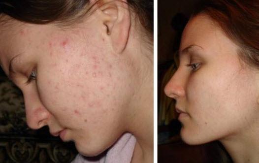 Аллергия и виды прыщей