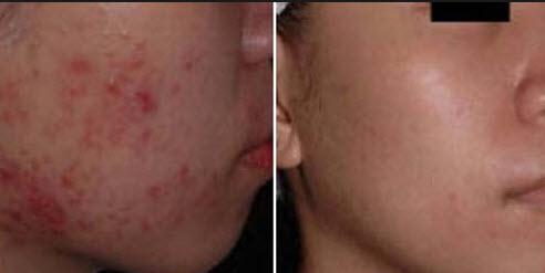 Озонотерапия лица фото до и после