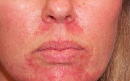 Аллергия от использования лекарства