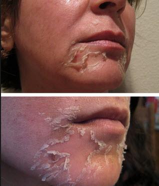 Почему происходит шелушение кожи