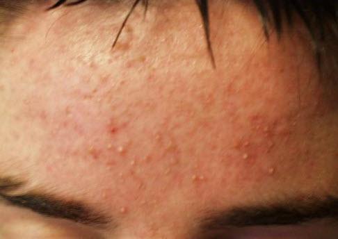 Аллергические прыщи на лице