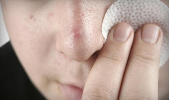 ватный диск или палочку наносить на лицо