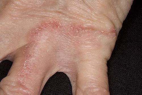 грибок на руках и коже