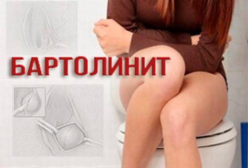 симптомы у женщин