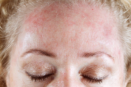 кожный дерматит фото