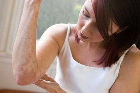 болезни и разновидности псориаза