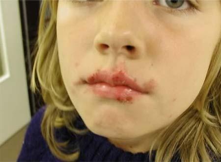 лечение детских вирусных инфекционных