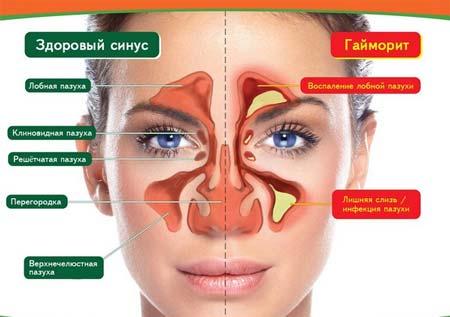 лечение отёка носа