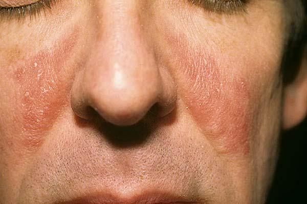 грибок на лице фото