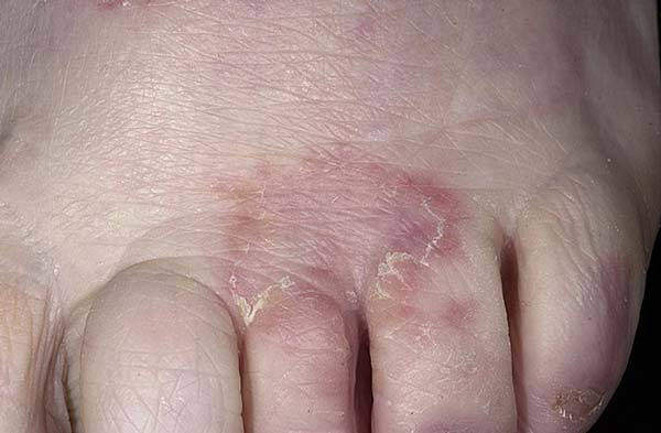 Лечение грибка между ног