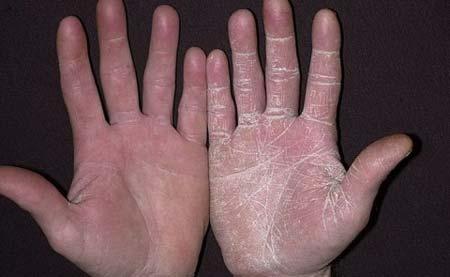 фото симптомы лечение
