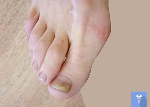 фото грибка на ногах