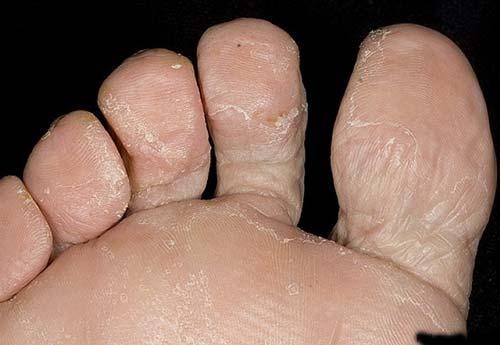 грибок стопы: фото симптомы