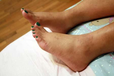 Ноги чешутся во время беременности