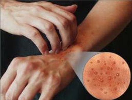 безымянный палец зуд