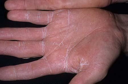 заболевание микозом