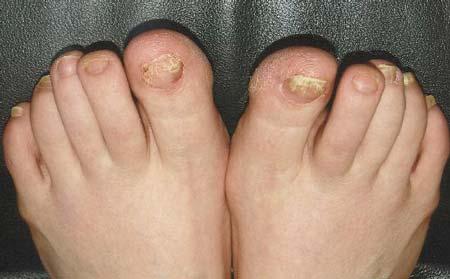 проявление микоза ногтей