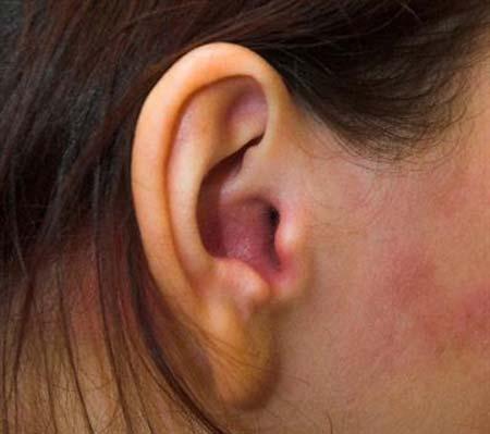 грибок в ушах