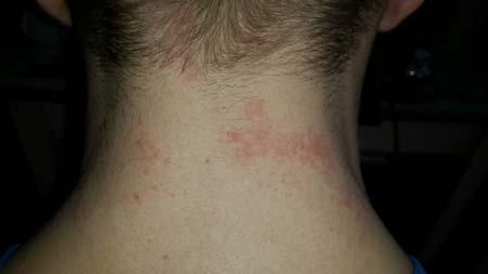 Сыпь на шее у ребенка фото причины