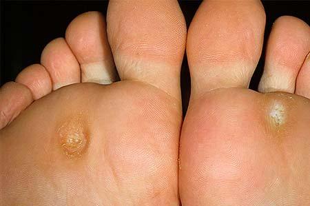 сухие мозоли на ногах
