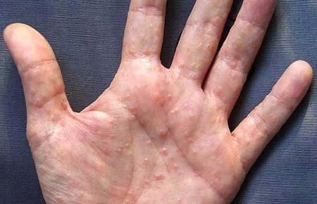 сыпь на руках у взрослого