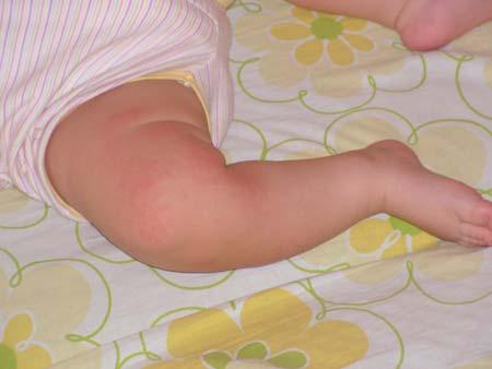 высыпание на ногах у ребенка