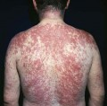 Себорейный дерматит - признаки и лечение