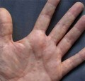 Почему чешется правая рука?