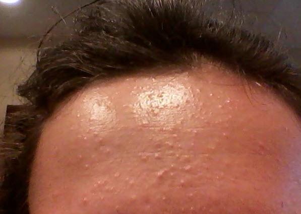 Различные прыщи и высыпания на коже всегда вызывают беспокойство и приносят дискомфорт.