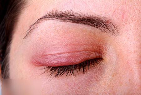 демодекс глаз что делать