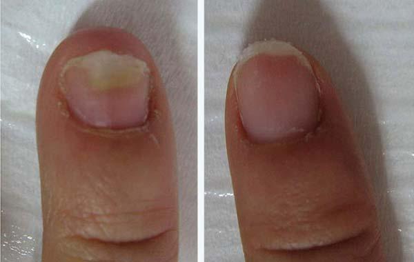 грибок ногтей на руках, фото