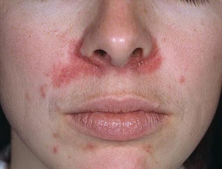 пероральный периоральный дерматит