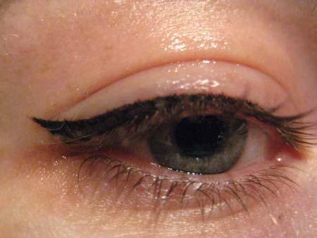 причины образования отёчности глаз