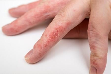 высыпания между пальцев рук