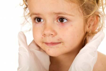 сыпь после высокой температуры у ребенка
