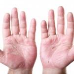 определяем состояние здоровья по рукам