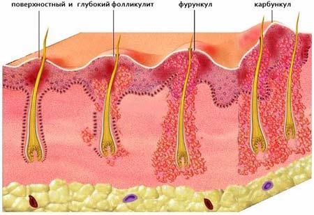 антибиотики при фурункулах чирьях