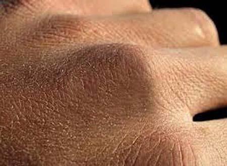 сухость рук