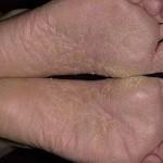 грибковое заболевание стоп